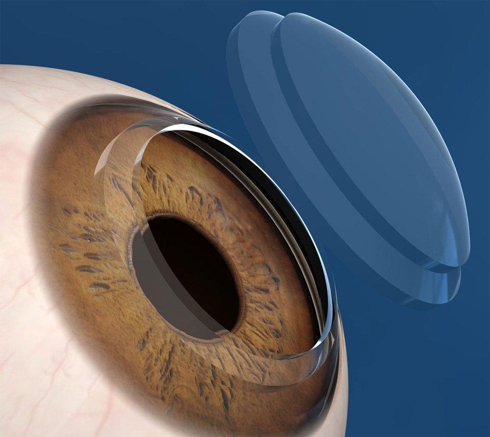 córnea artificial