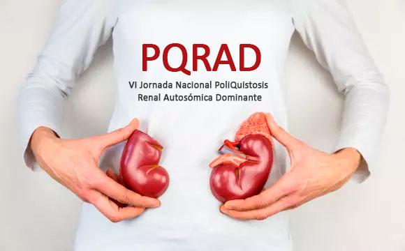 VI Jornada Nacional PoliQuistosis Renal Autosómica Dominante